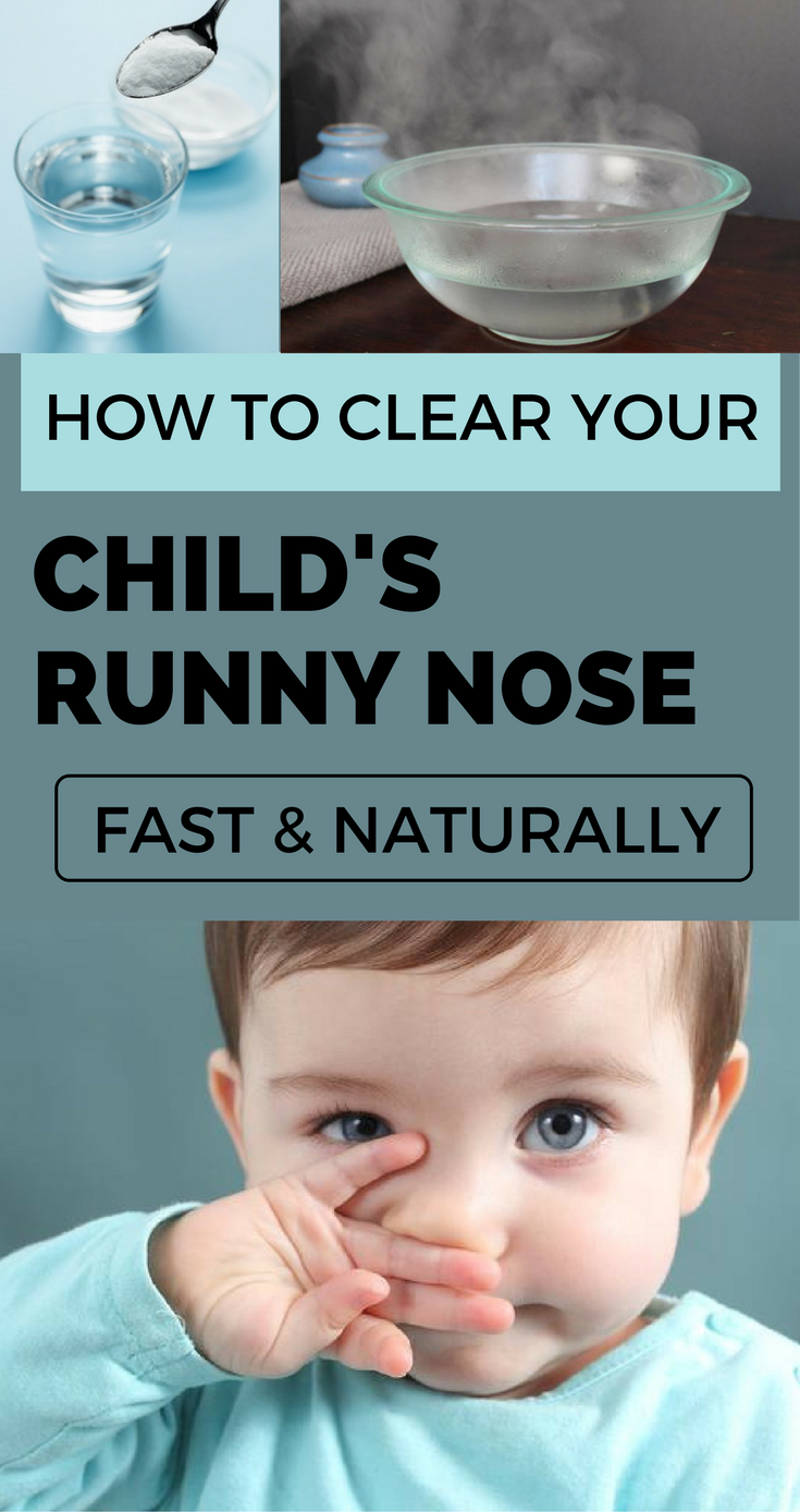 How To Clear Your Child S Runny Nose Fast And Naturally Remediesspot Com In 2020 Baby Runny Nose Toddler Runny Nose Runny Nose Remedies