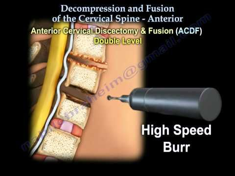 Cervical Spine Surgery (ACDF) - Swallow & Voice Problems ...