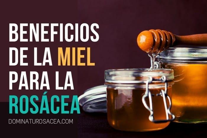 ¿Miel para la rosácea? Descubre cómo usarla para cuidar tu piel.
