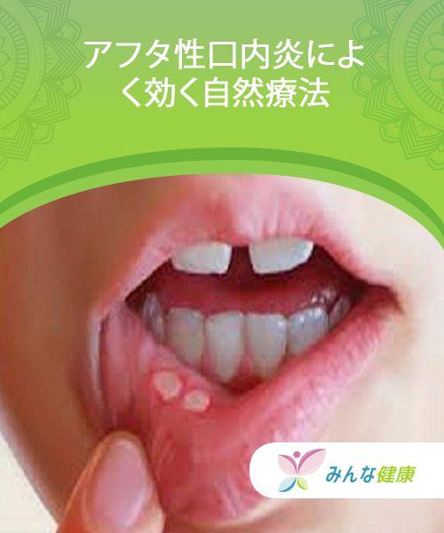 アフタ性口内炎によく効く自然療法 — みんな健康 | アフタ性口内炎 ...
