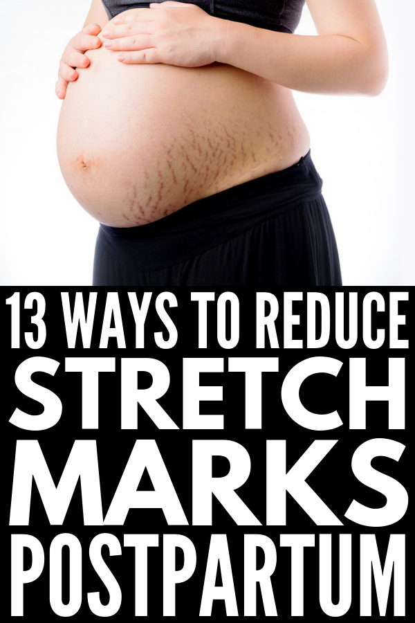 Pin on Stretch Marks Removal