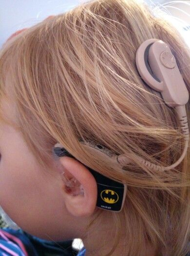 Custom Hearing Aid or Cochlear Implant Retaining by thebebopshop ...