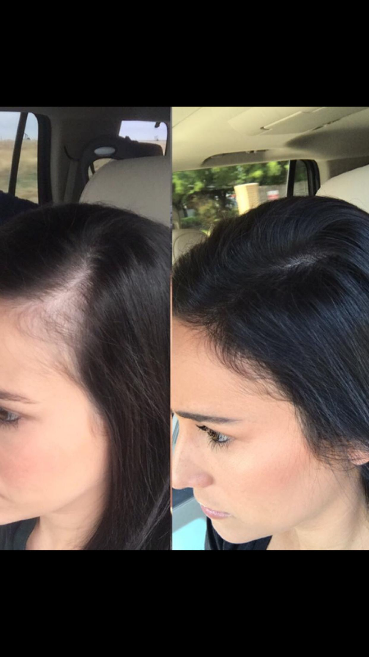Postpartum Hair Loss? Monat Can Help With That
