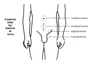 What Is A Hernia How Are Hernias Repaired Hernia Repair Repair Peace Gesture