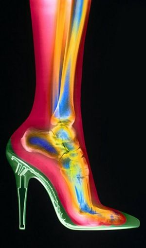 the foot comprises many bones, including the calcaneus (heel bone, Human Body