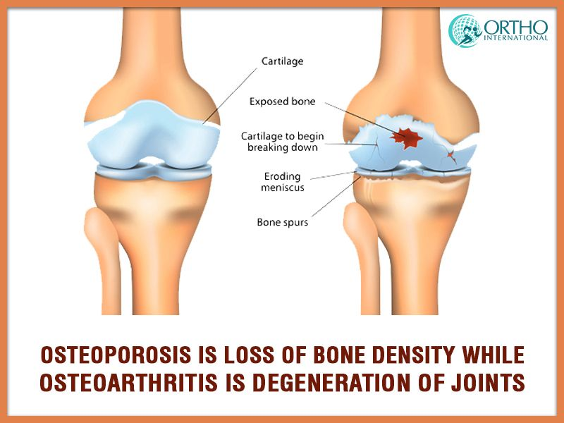 15++ Can osteoarthritis lead to osteoporosis viral
