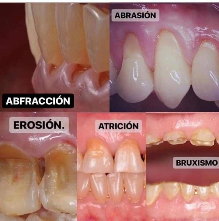 #DentalHygienistCup | Dental life, Dental, Dental health