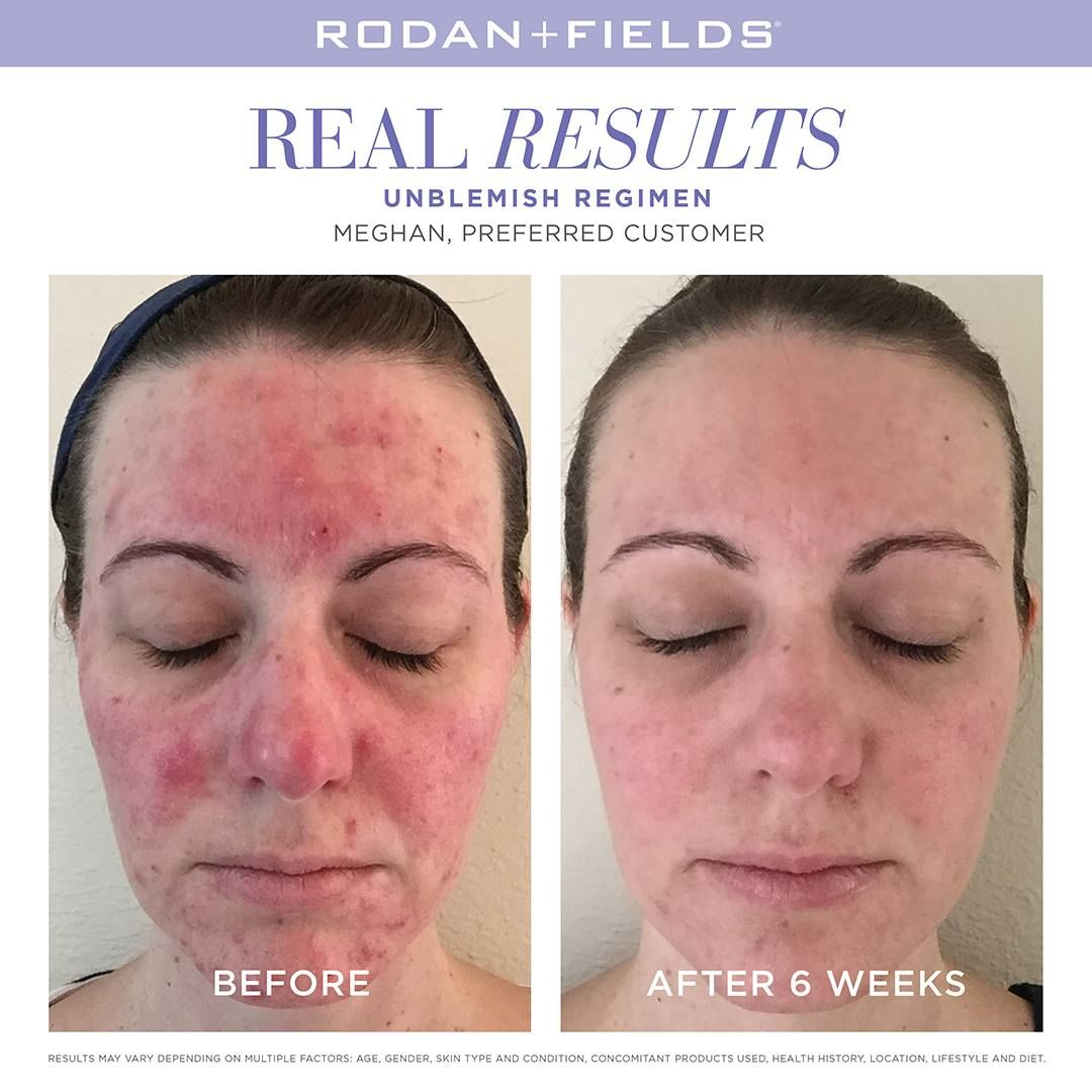 Take control of adult acne with Rodan + Fields UNBLEMISH