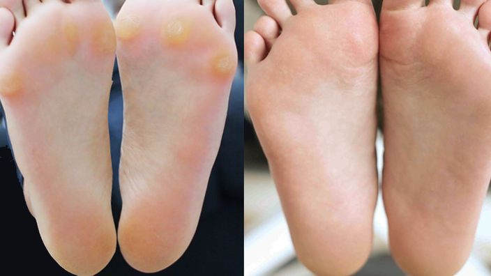 Heal Your Soles With Natural Exfoliant Style Natural