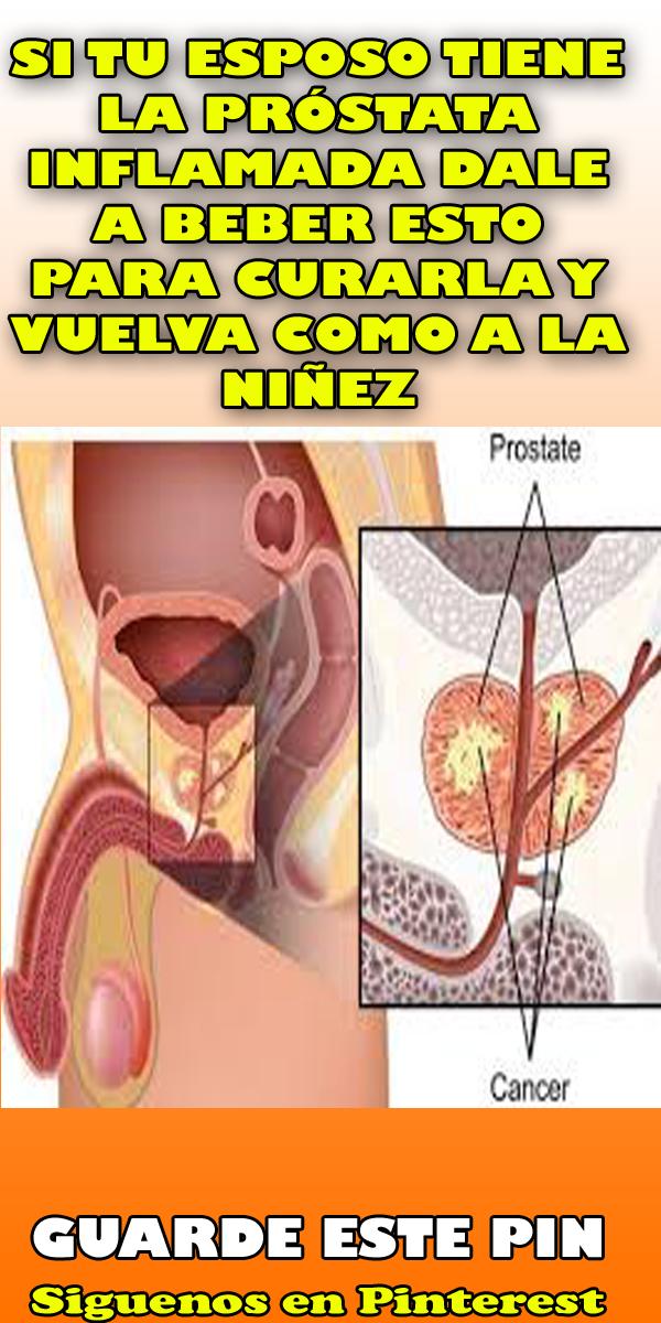 mi prostata inflamada)