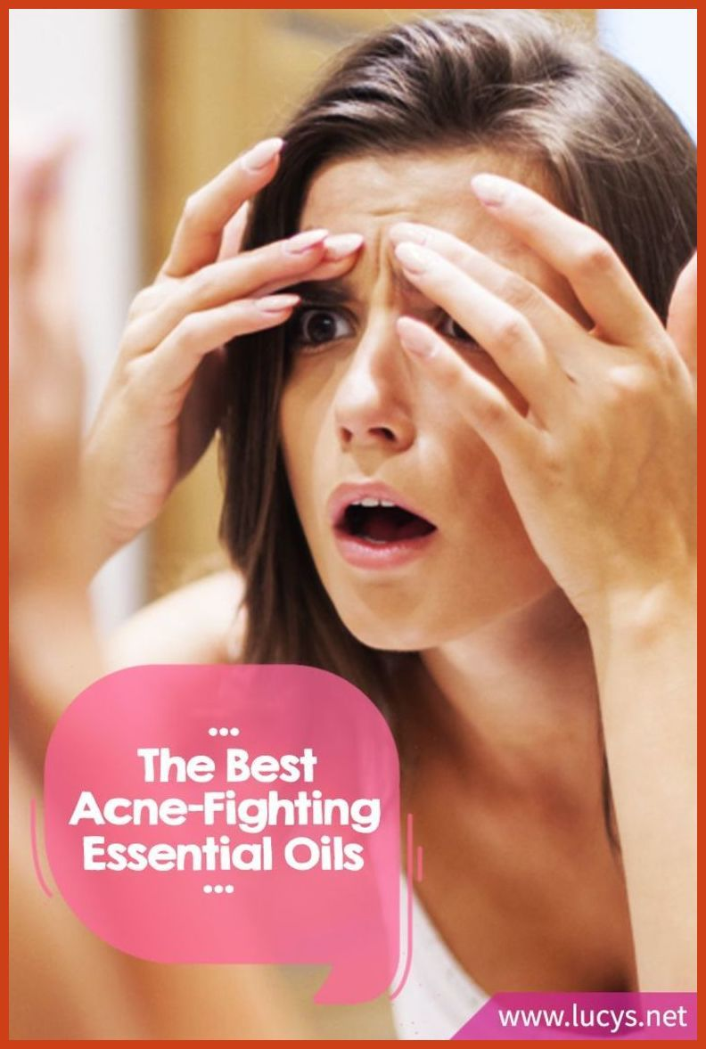Folk remedy for acne at home 41
