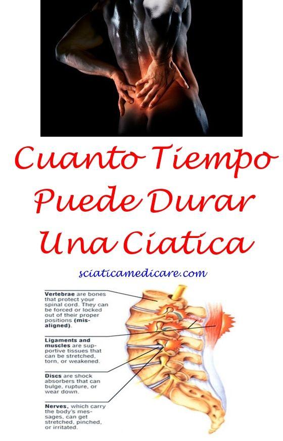Ciatica Duracion | nervio ciatico | Pinterest | Ciatica tratamiento ...