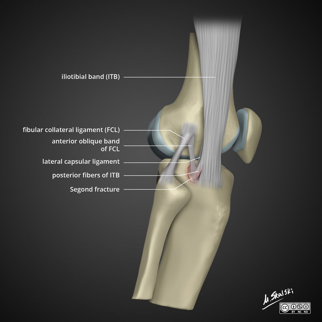 Segond fracture is an avulsion fracture of the knee which involves ...