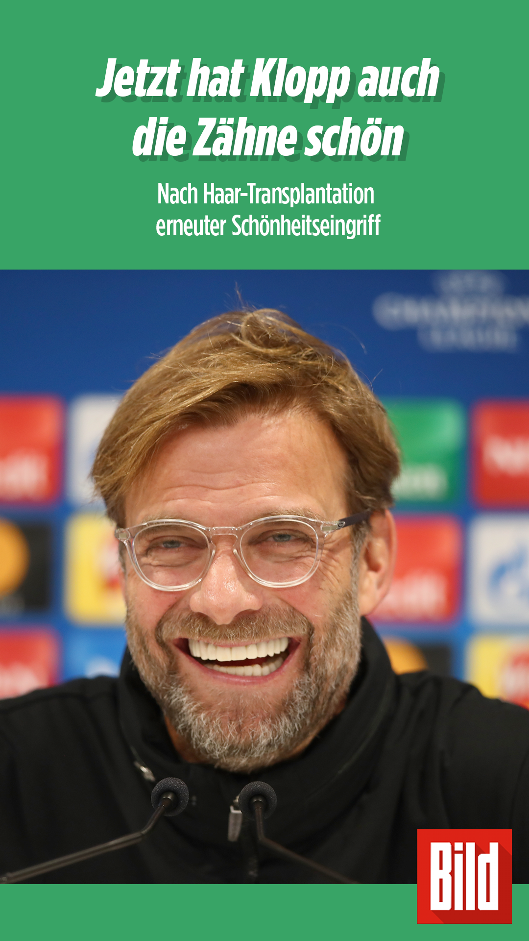 Jurgen Klopp Liverpool Trainer Hat Sich Zahne Machen Lassen Juergen Klopp Liverpool Zahne