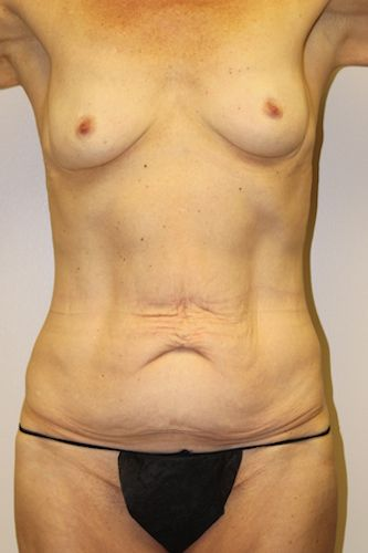 Before Mommy Makeover - Click to see her results after a breast augmentation and tummy tuck with Dr Firouz!