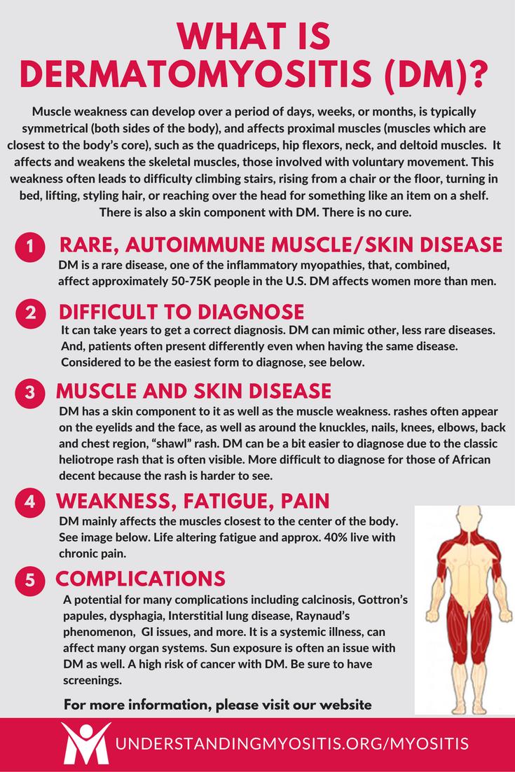 What is Dermatomyositis? | Dermatomyositis