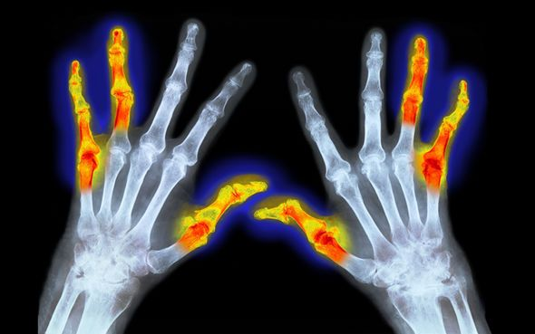 Top 40 Science-backed Potent Foods That Relieve Arthritis Pain