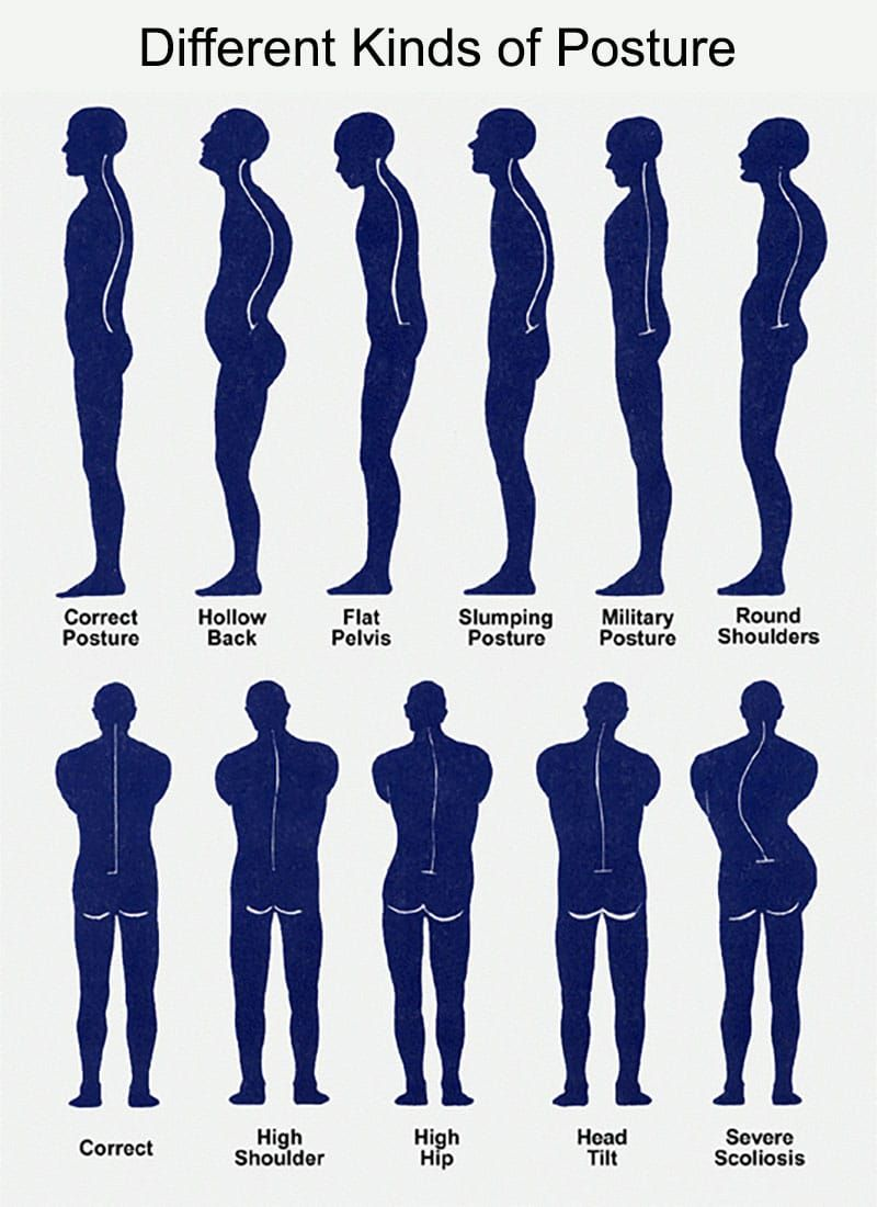 Benefits of a good posture and 13 tips to get one