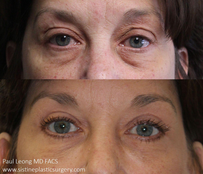 Beforeafter Blepharoplasty Upper Eyelid Lift Dr Leong