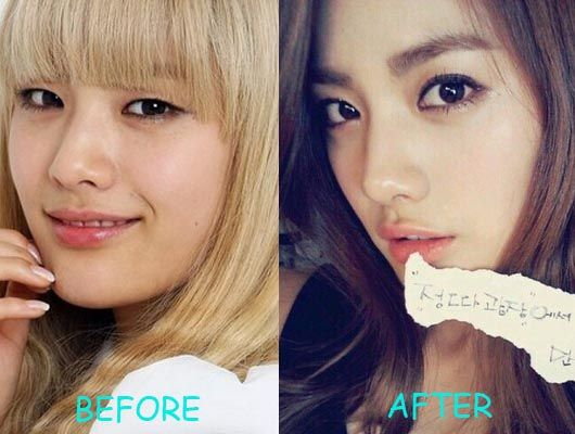 After School Nana Plastic Surgery Before And After Picture Skin Care Acne Plastic Surgery Proper Skin Care