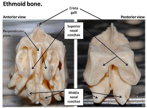 Ethmoid bone, anterior and posterior views with labels - Axial ...
