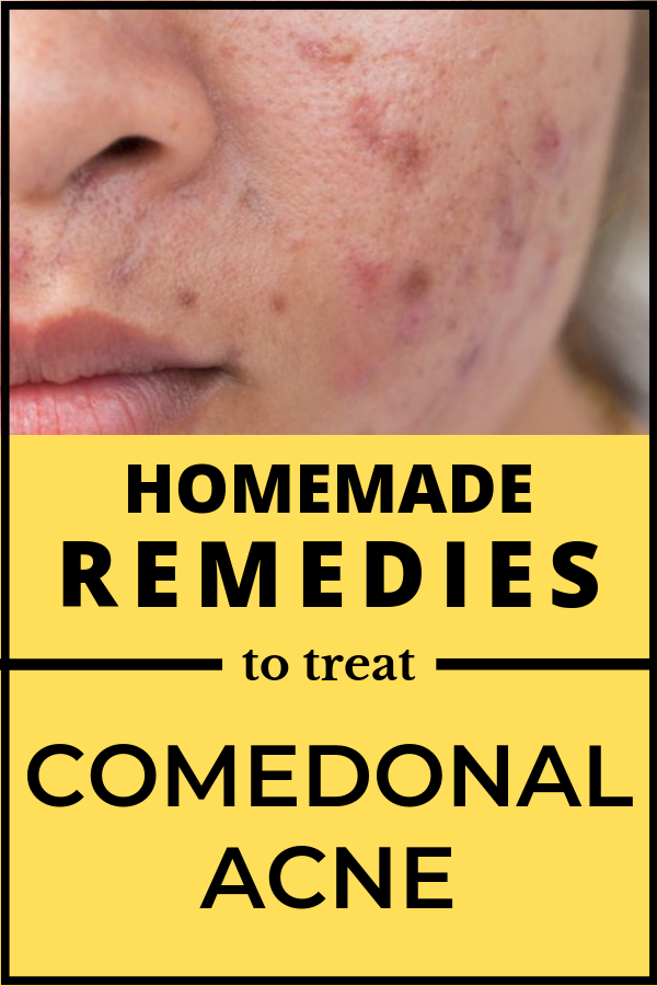 Home Remedies To Treat Comedonal Acne Beauty Tips Home Remedies For Acne Baking Soda Facial Remedies