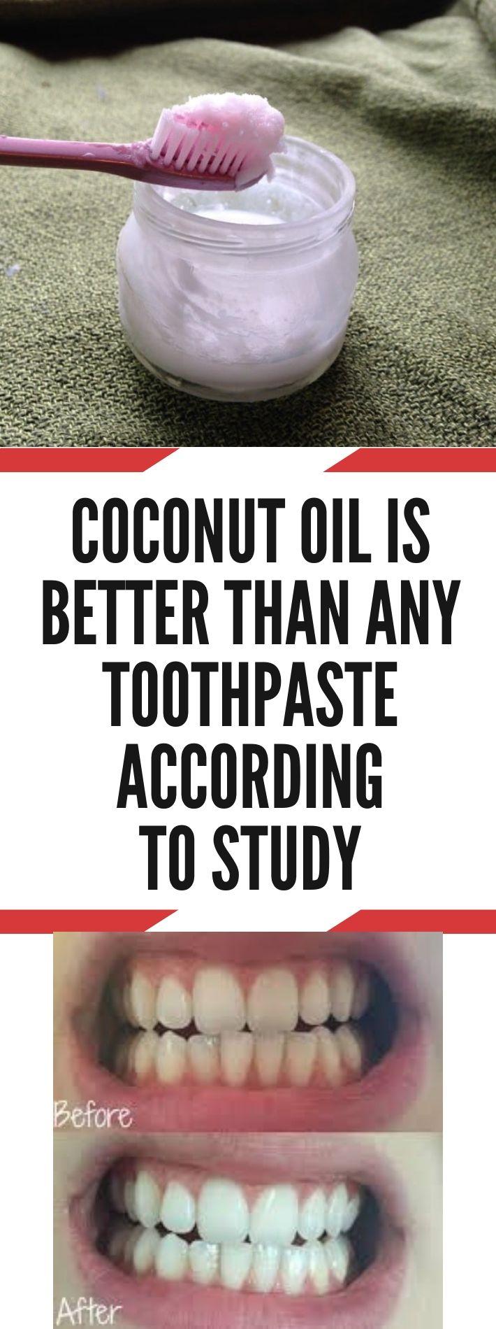 Kokosöl ist laut Studie besser als jede Zahnpasta   – Best Beauty Tips and Tricks