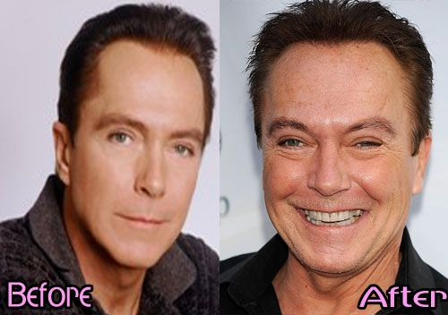 David Partridge   even the before pic is after plastic surgery