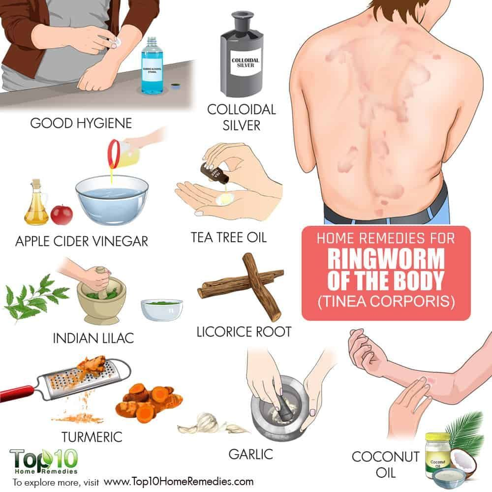 How To Get Rid Of Ringworm Of The Body Homeremediesforringworm