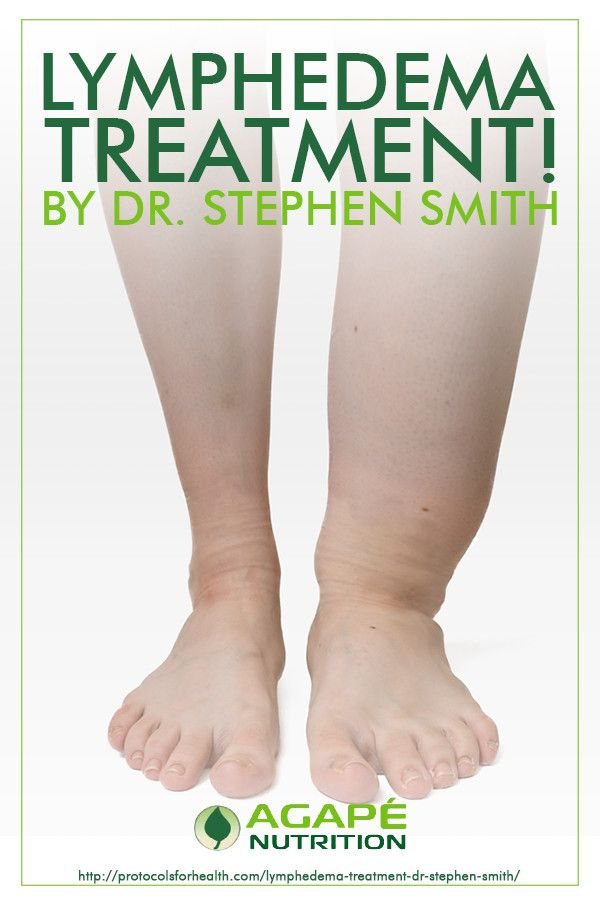 Lymphedema Treatment! By Dr. Stephen Smith | Agape