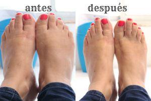 que hacer para los pies hinchados durante el embarazo