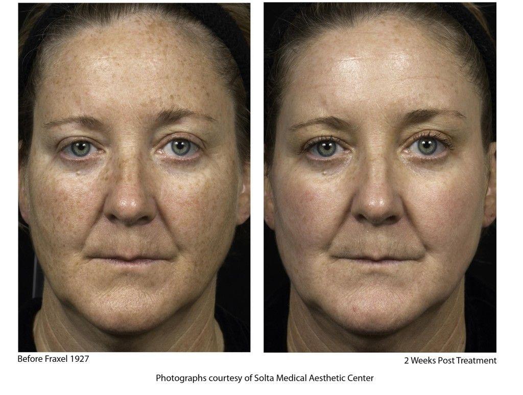 Treating Rosacea Project Skin S Janice Coplin Explains Laser