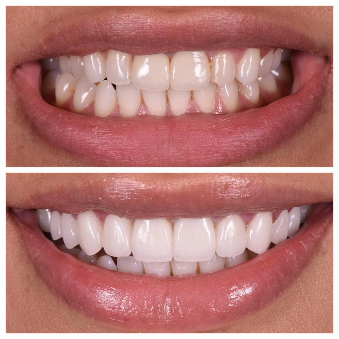 Dental Veneers Before and After - Dr  Apa Veneers Results | Teeth in