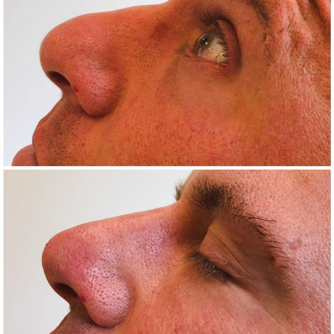 Non surgical rhinoplasty this technique should only be