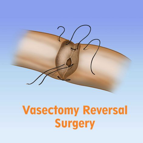 How to Reverse Vasectomy