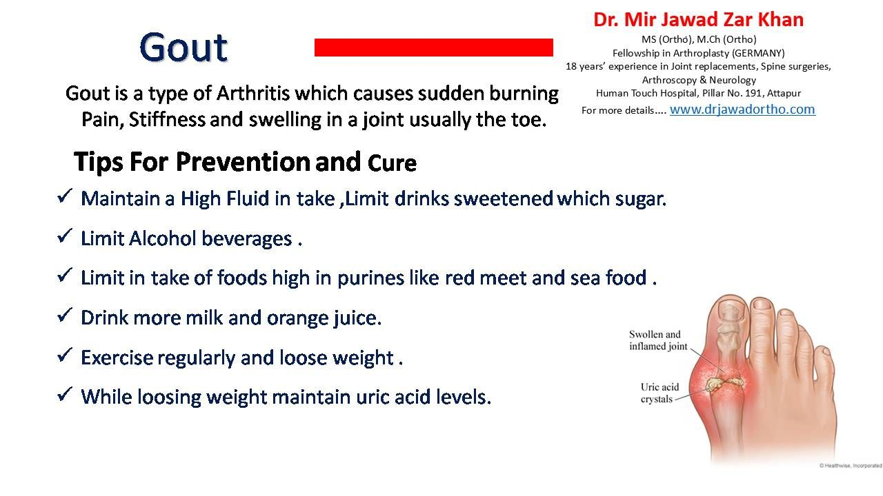 Gout is a common and complex form of arthritis that can affect