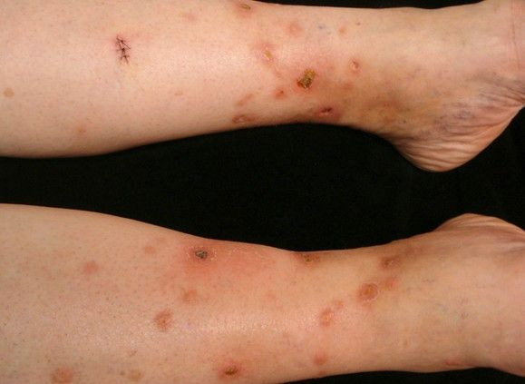 The disease sarcoidosis is marked by the inflammation in the skin ...