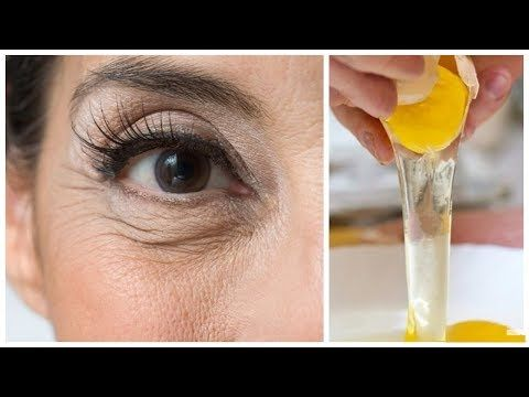 Photo of EYE NATURAL SOLUTION TO Wrinkles WITH EYE …