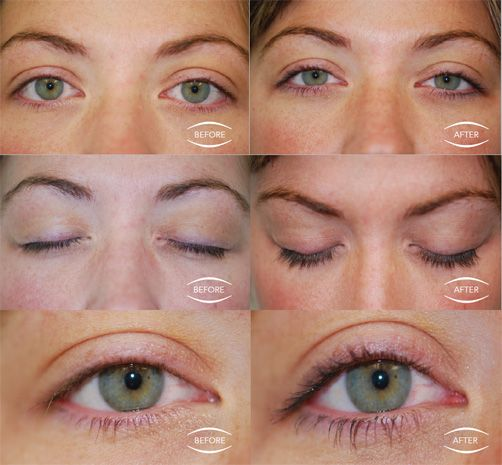 Clinical Stus Image Skincare Ageless Lashes