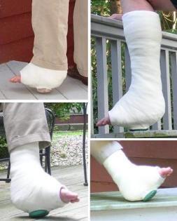 Walking Cast Rubber Orthopedic Heel | yard and gardening