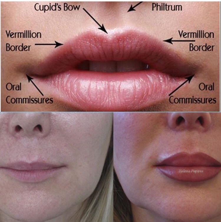 Lip Augmentation at Laser Clinique | Lip Augmentation | Pinterest ...