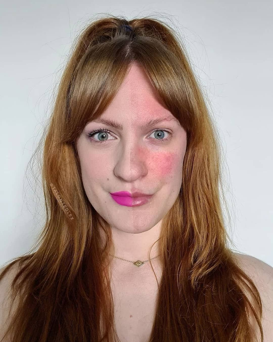 11 Things People Living With Rosacea Want You To Know Rosacea Makeup Rosacea Rosacea Treatment