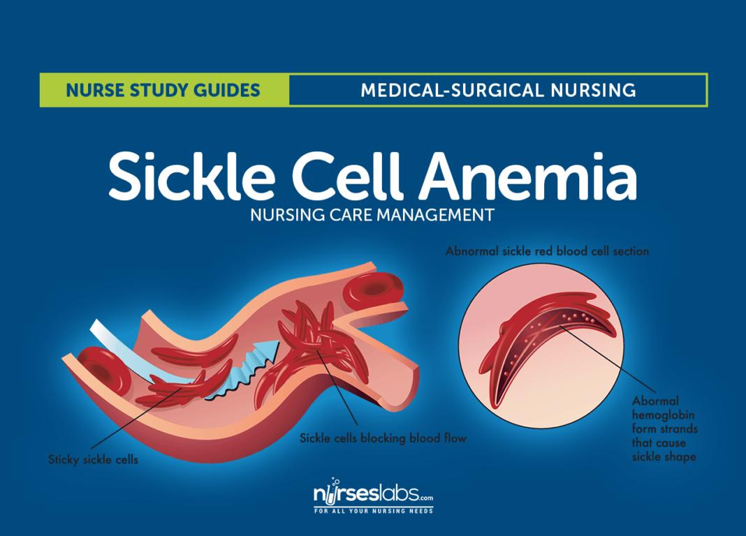 Pin on Anemia nursing