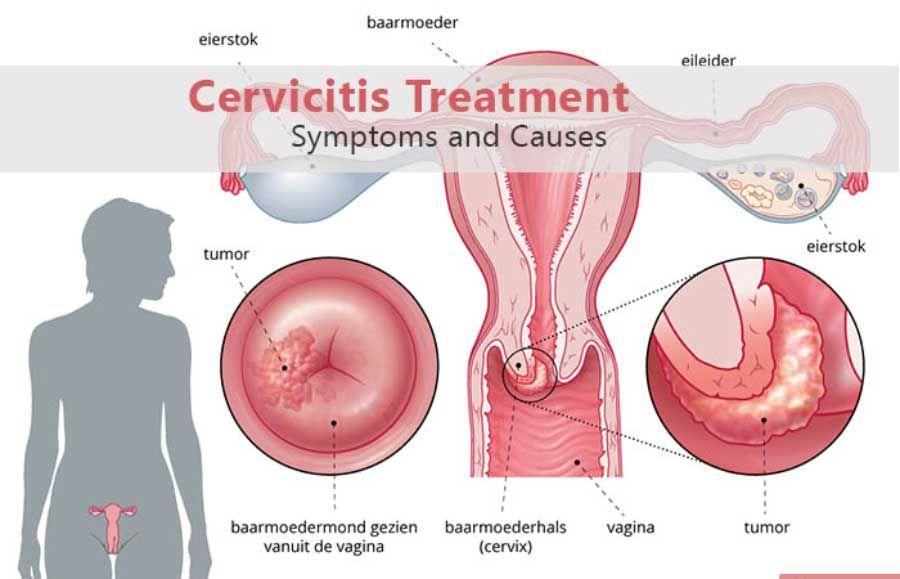 mucoasa cervicală și nematode