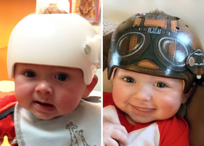Artist Transforms Babies HeadShaping Helmets Into Beautiful Art - Baby helmet decalsa family blog that takes you through the experience of a baby with