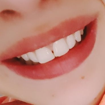Perlodent med Actischmelz Zahncreme mit künstlichen Zahnschmelz