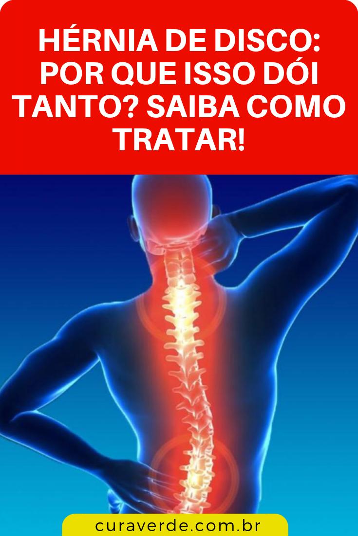 Sintomas disco hernia de
