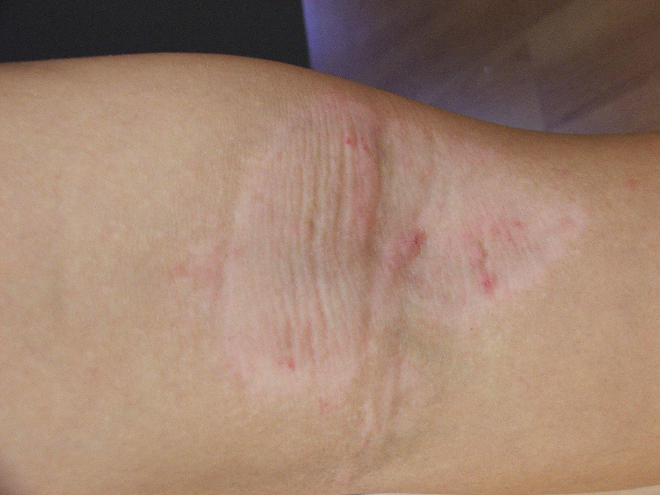 Pin by Zeynep Ibrahim on dermatology   Eczema treatment, Skin clinic ...