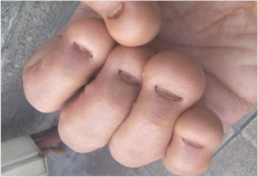 Stop Biting Your Nails Help For Nubby Nail Sufferers Such A Disgusting Habit Especially S Who Do This