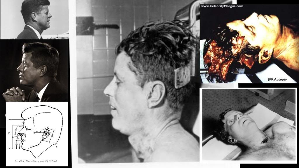the controversy surrounding the death of president john f kennedy Twenty-five minutes before john f kennedy was assassinated, a british  to mi5  calculations, about 25 minutes before the president was shot.